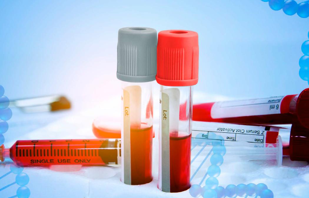 """Webinar """"Un llamado a la acción: Detección oportuna de riesgo trombótico y manejo de la terapia anticoagulante en pacientes con COVID-19"""
