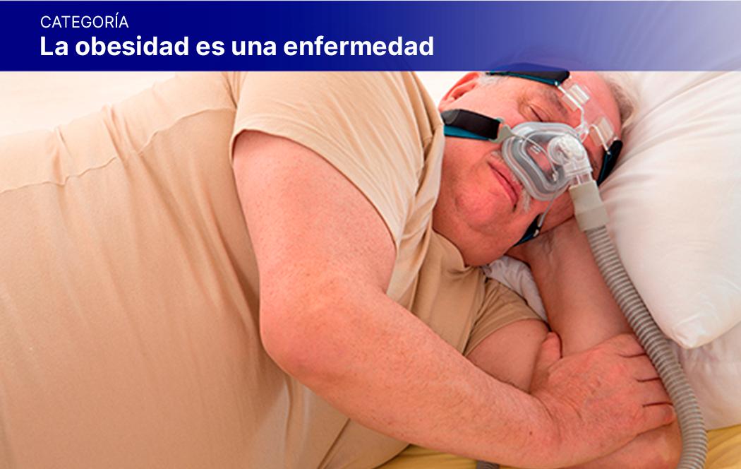 """6. Cápsula """"Asociación entre Obesidad y Apnea del Sueño: causas y consecuencias"""""""