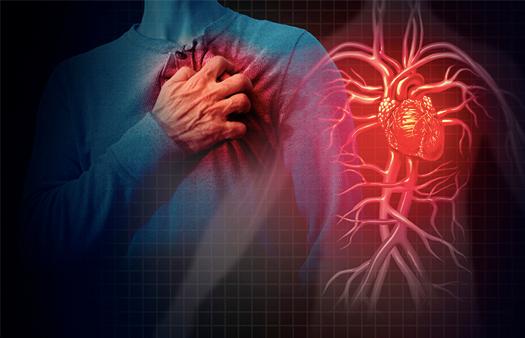 """Nota """"COVID-19 en pacientes con enfermedad cardiovascular establecida"""""""