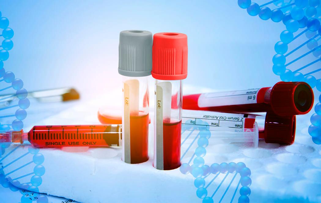 "Nota ""Diagnóstico clínico de la Hemofilia Adquirida"""
